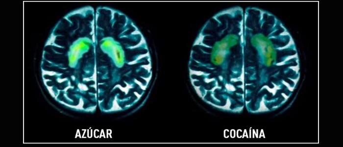 el azúcar es adictivo